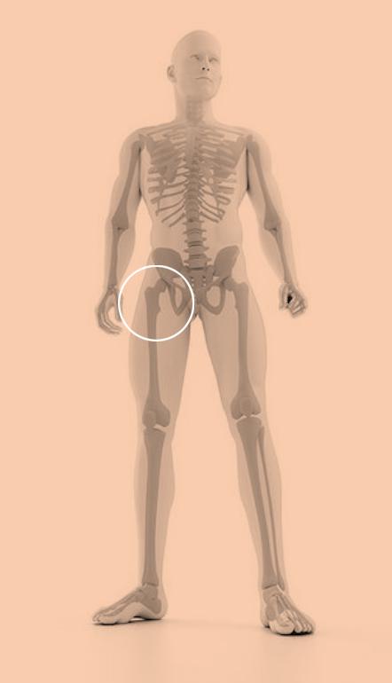 aandoening heup bovenbeen podotherapie amsterdam
